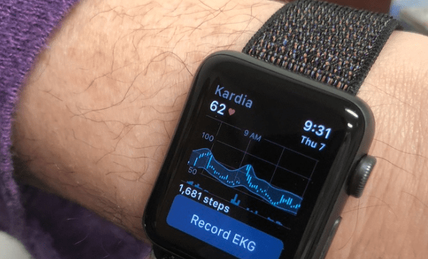 Kardia's Fascinating SmartRhythm For Apple Watch Is Very Cool: Will It Allow Personal Atrial Fibrillation Detection?