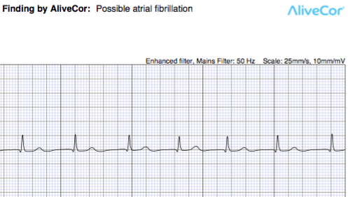 AliveCor Mobile ECG : Ways To Minimize Low Voltage and  Unclassified Recordings
