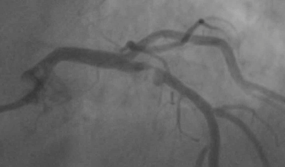 ISCHEMIA Shows Medical Therapy Outcomes As Good As Coronary Stents or Bypass For Most CAD Patients