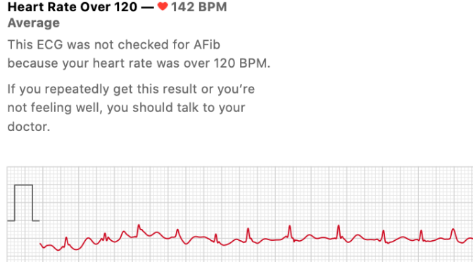 Apple Watch ECG Cannot Diagnose Atrial Fibrillation Faster Than 120 BPM