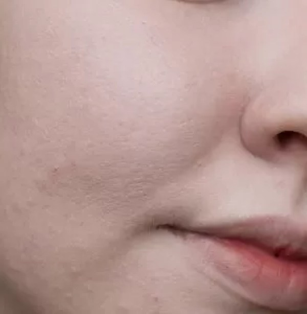 Pores and skin texture wearing The Ordinary Colour Serum Foundation