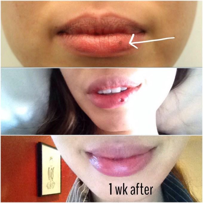 Lip biopsy scar for Lip tattoo removal cost