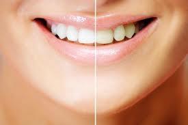 b2ap3_thumbnail_whiten-teeth.jpg