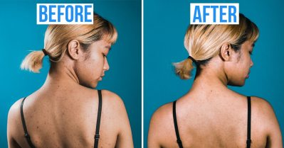 back acne before after