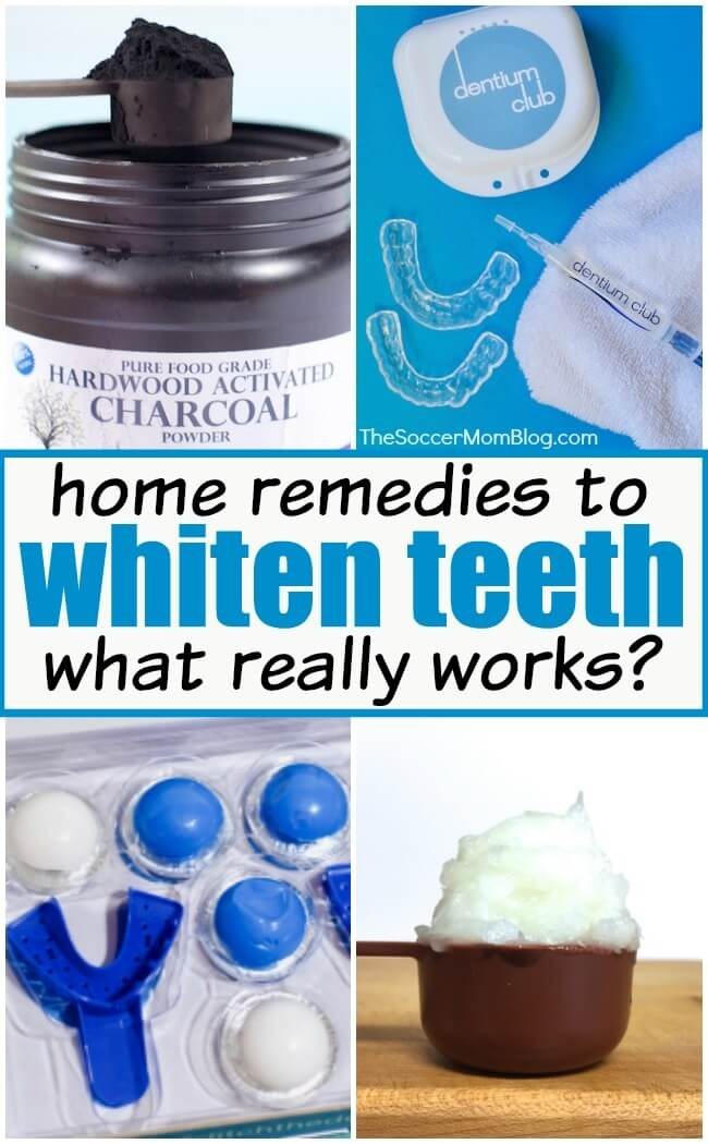 The Best Way to Whiten Teeth at Home (We compare methods!)