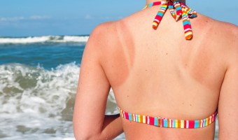 5 Ways to Getting Rid of Sun Tan Naturally
