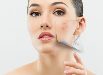 7 Best Products to Control Acne Instantly for Indian Skin