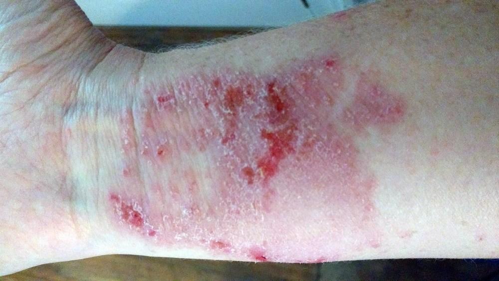 arm with poison ivy rash