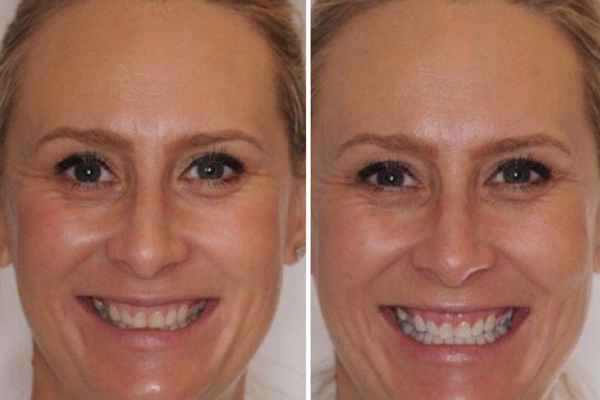 The Style Trust_Teeth Whitening_Phillips Zoom_Featured
