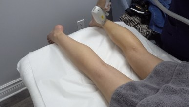 kasey ma of the stylewright gets laser treatment back side of legs