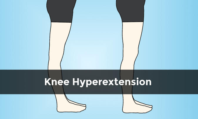 Illustration of a knee hyperextension and normal posture