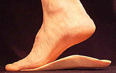 Do orthotics work for Morton's Neuroma?