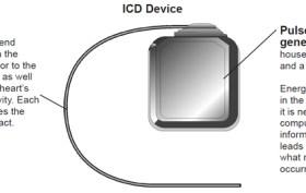 ICD-Device