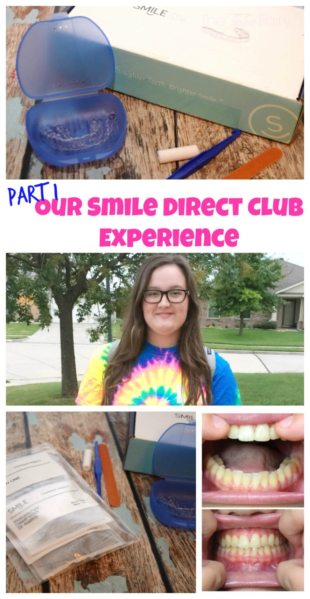 Follow our journey w/ SmileDirectClub & get an exclusive discount code! #WhatMakesMeSmile #ad