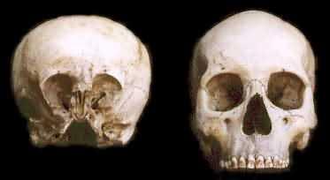 Starchild Skull