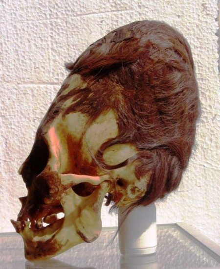 Elongated Skull Peru Red Hair 450x549 DNA Results For The Nephilim Skulls In Peru Are In And The Results Are Absolutely Shocking