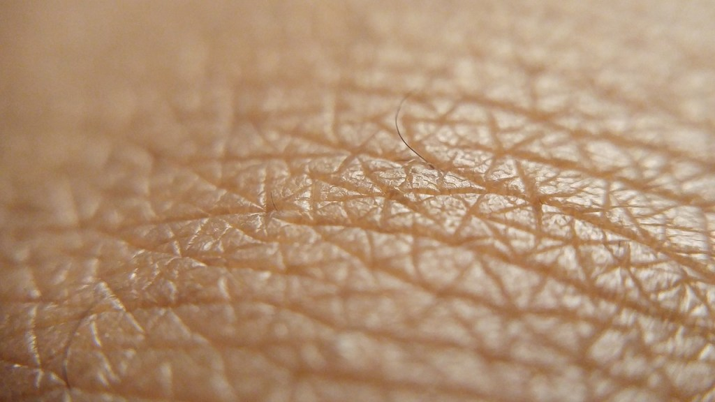 Experiencing the cycles and triggers of Psoriasis