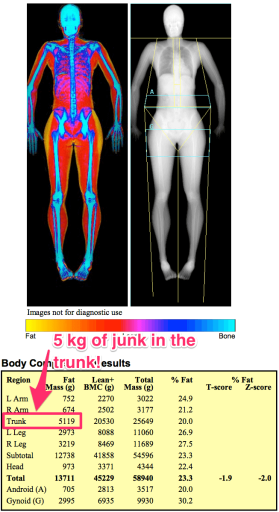 Kim DEXA Scan body fat