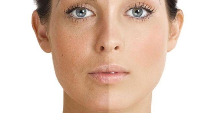 facial acid skin care
