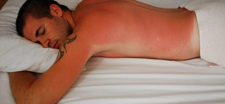 sunburn rest
