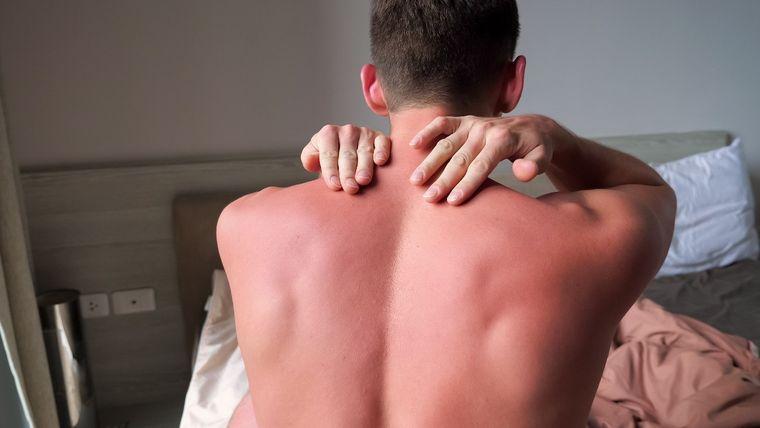 unpleasant sunburn symptoms