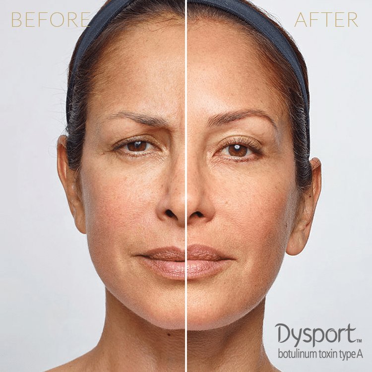 Injectables-Dysport