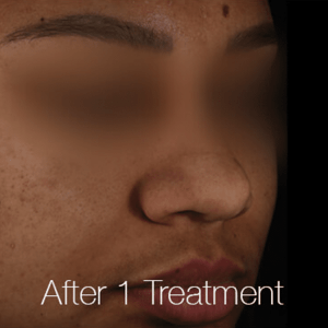 Pigment-Correction-After3