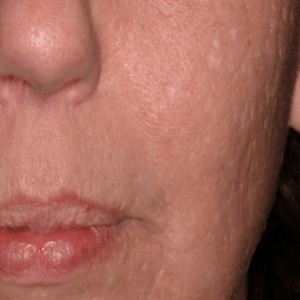 Scar-Removal-After4