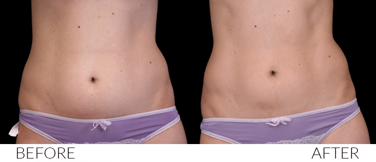 BEFORE-AND-AFTERS-Emsculpt5
