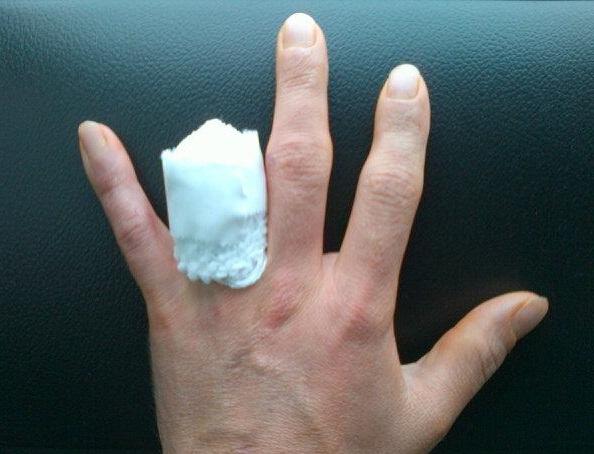 Finger Amputation