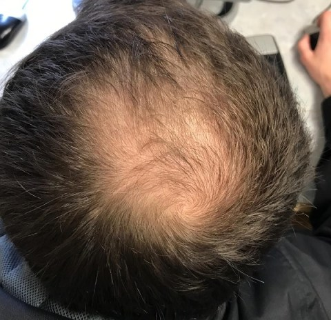 Ten Questions When Dealing With Hair Thinning And Male Pattern Baldness