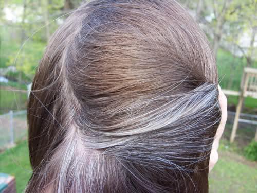 Best vitiligo hair colour   The Vit Pro