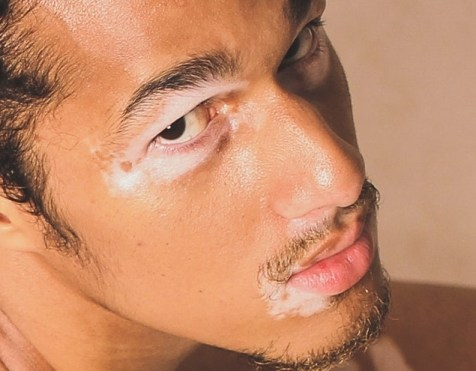 A Vitiligo Guide Where To Find Help The Vit Pro A Vitiligo Blog
