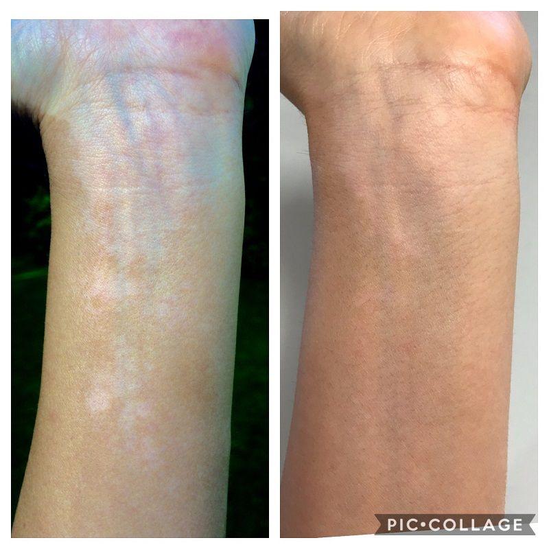 Vitiligo Help On The Internet Self Care Tips The Vit Pro A Vitiligo Blog