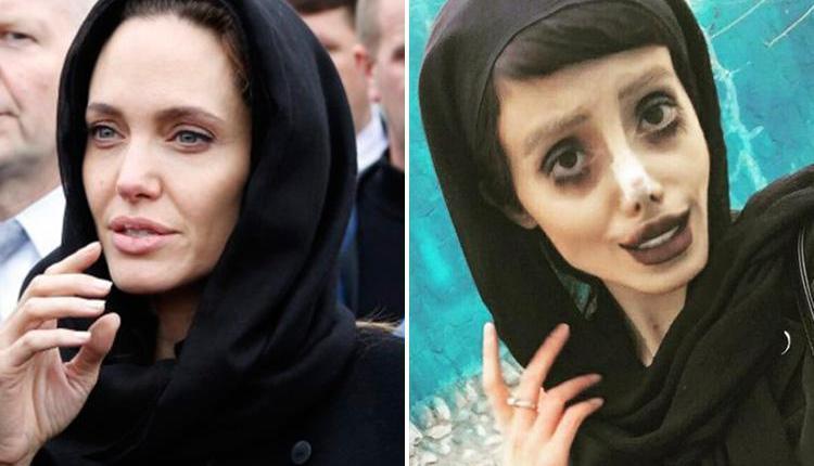 Iranian Teen Undergoes 50 Surgeries To Look Like Angelina Jolie