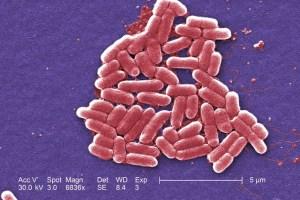 The mcr-1 plasmid-borne colistin resistance gene has been found primarily in Escherichia coli, pictured. Credit: Reuters/Courtesy CDC