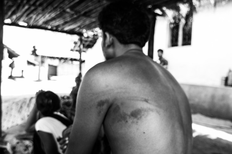 Gyaneshwar Kirange, who once dreamed of joining the police, revealing week-old injuries that he received from the Chatgaon police. Credit: Javed Iqbal