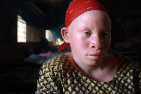 A teenage Tanzanian albino girl sits in the female dormitory at a government-run school for the disabled in Kabanga, in the west of Tanzania near the town of Kigoma on Lake Tanganyika June 5, 2009.