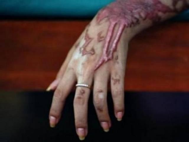 A victim of acid attack. Credit: Reuters