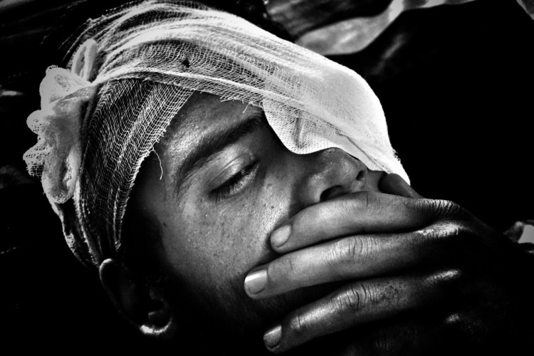 On August 5, Umar Yousuf, a class 11 student from Budgam, was hit by pellets in his left eye in the Beeru area of the district. Credit: Shome Basu