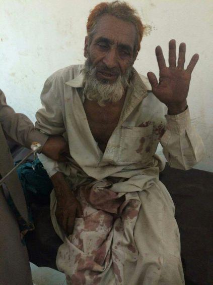 An elderly man injured during the firing. Credit: Amiruddin Mughal