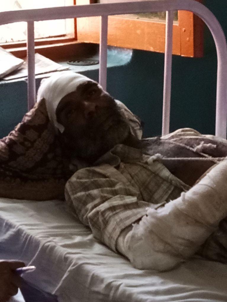 Agni Bhaskar who was attacked in Shabbirpur. Credit: Srija Naskar