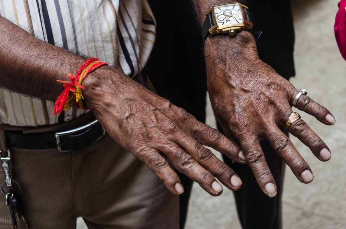 Dark patches on the skin of a resident's hands. Credit: Sayan Bhattacharjee
