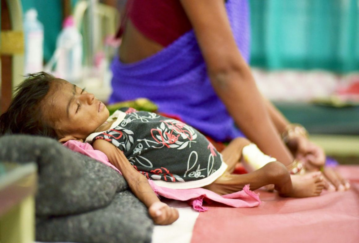 Malnutrition Reuters