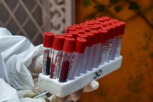 New Delhi: A medic takes blood samples for serological survey to analyse the spread of COVID-19, at Paharganj in New Delhi, Saturday, June 27, 2020. (PTI Photo/Manvender Vashist)(PTI27-06-2020 000189B)