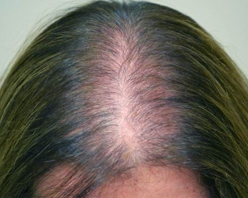 Алопеция у женщин - виды, признаки, лечение алопеции