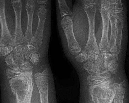 Лфк при переломе со смещением лучезапястного сустава замена коленного сустава в орле