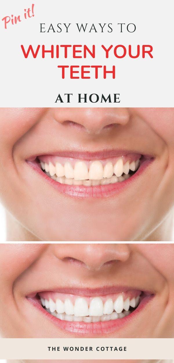 easy ways to whiten teeth