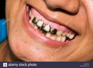 mouth-of-native-with-gold-teeth-and-dental-work-central-america-BAWX4K