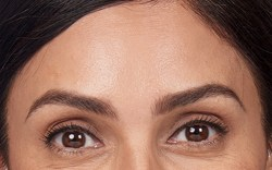 Alexandra's forehead lines after botox